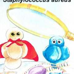 A closer look at the Transcriptome of Staphylococcus aureus