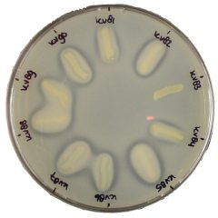 Casein agar plate