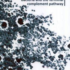 Molecular interplay between bacteria and the terminal complement pathway